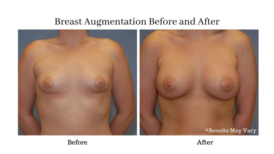 Breast Augmentation Before and After Patient of Dr. Mockler.