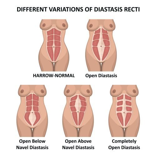 different variations of diastasis recti - Illustration