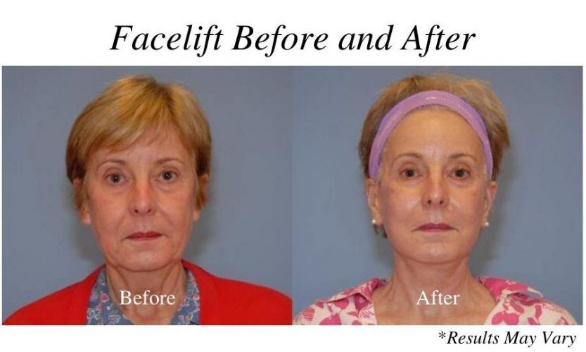 Before and after image showing the results of a facelift performed by Dr. Mockler in Panama City, Florida.