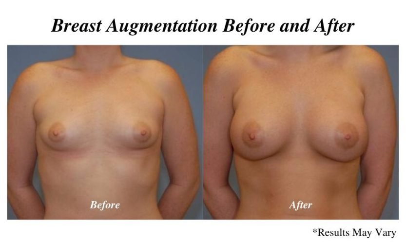 Before and after imaging showing the results of a breast augmentation performed in Panama City, FL.