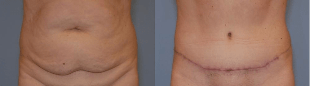 Before and after image showing the results of a tummy tuck performed in Panama City, FL.